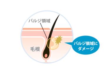 ストラッシュ 京都店の脱毛方法